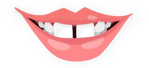 Bouche avec les dents écartées